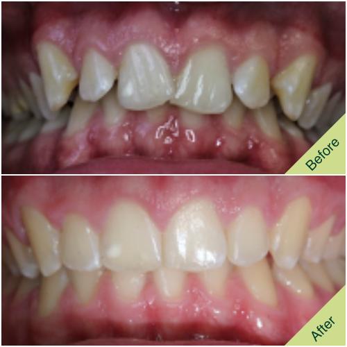 Orthodontic Fastbraces Result 2