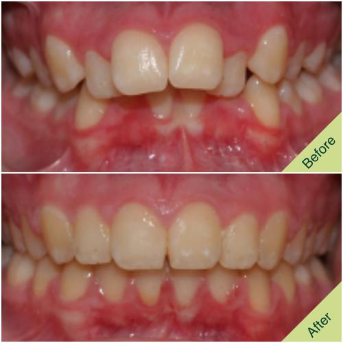 Orthodontic Fastbraces Result 5