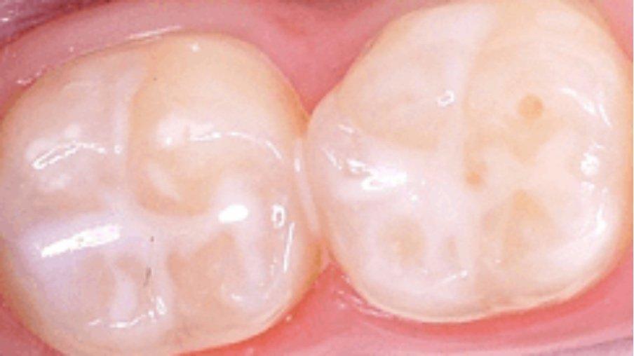 Fissure Sealants - Glendowie Dental Centre