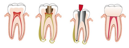 Root Canal Treatment - Glendowie